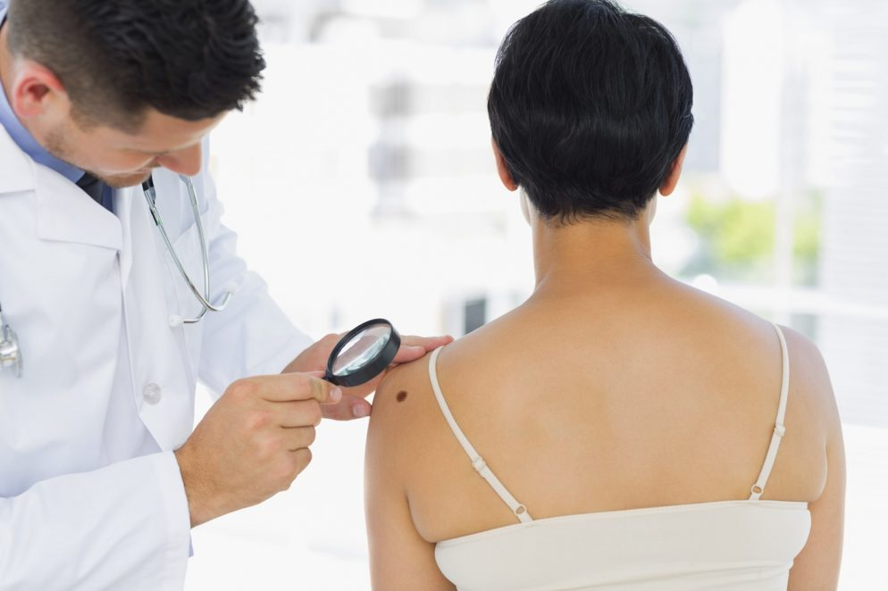 How to Tell the Difference Between a Mole and Melanoma