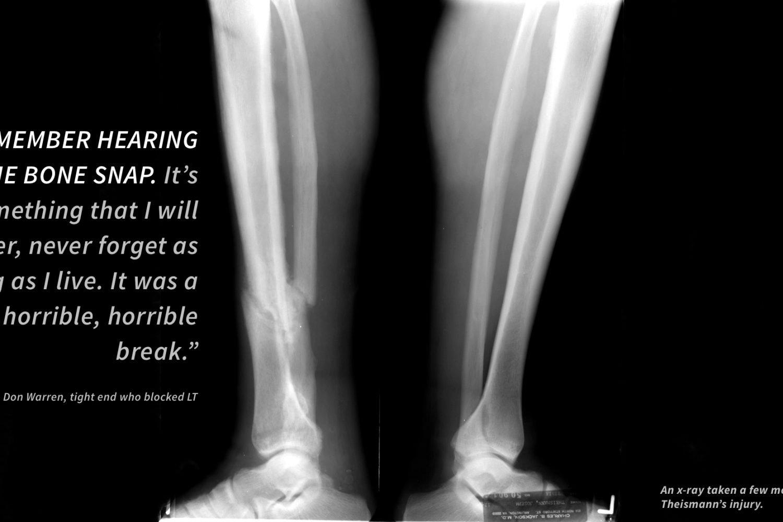 The Oral History of Joe Theismann's Broken Leg