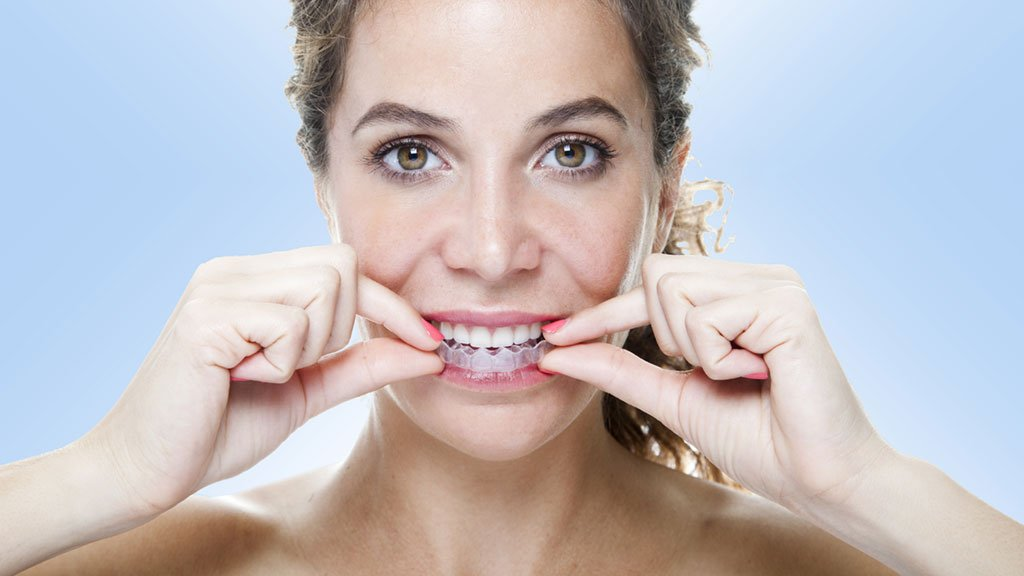As patents for Invisalign expire, expect more options at lower prices. Photograph by Vasileios Economou/Getty Images.