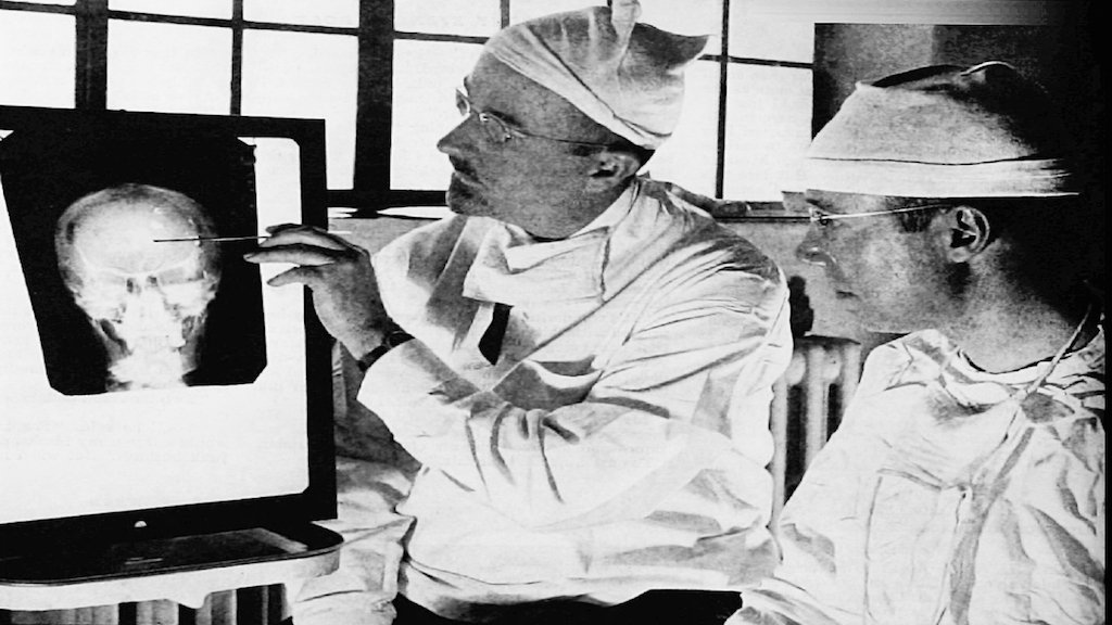 The First Lobotomy in the US Happened at George Washington University