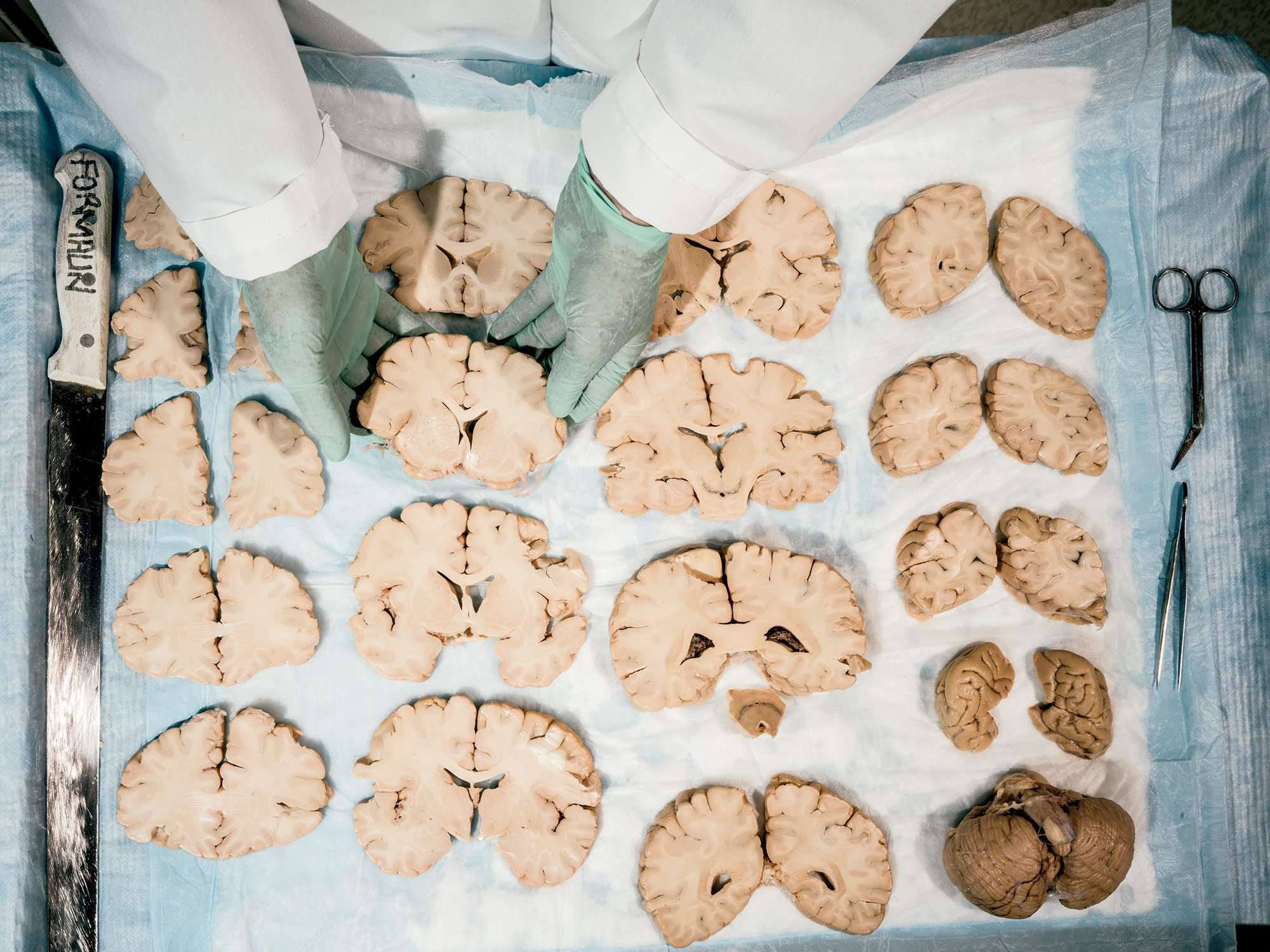 Human brains awaiting study at NIH's brain bank, which Lipska has led since 2013. Photograph by Greg Kahn.