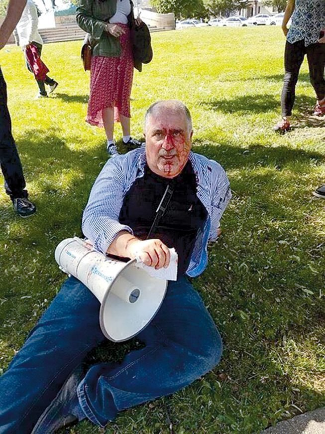 Murat Yasa, a 61-year-old Kurdish-American, was also hospitalized. Photograph courtesy of Murat Yasa.